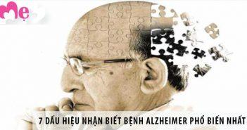7 dấu hiệu nhận biết bệnh Alzheimer phổ biến nhất