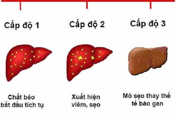 Biểu hiện của gan nhiễm mỡ 3 cấp độ