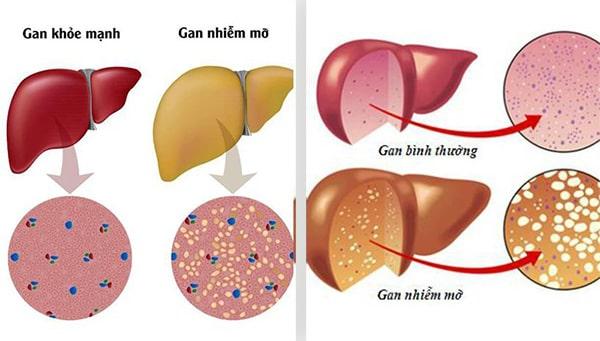 Gan nhiễm mỡ là việc tích mỡ quá nhiều mỡ ở gan