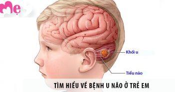 Dấu hiệu bệnh u não ở trẻ em, nguyên nhân và cách điều trị