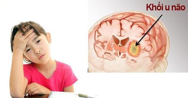 Tình trạng u não ở trẻ em