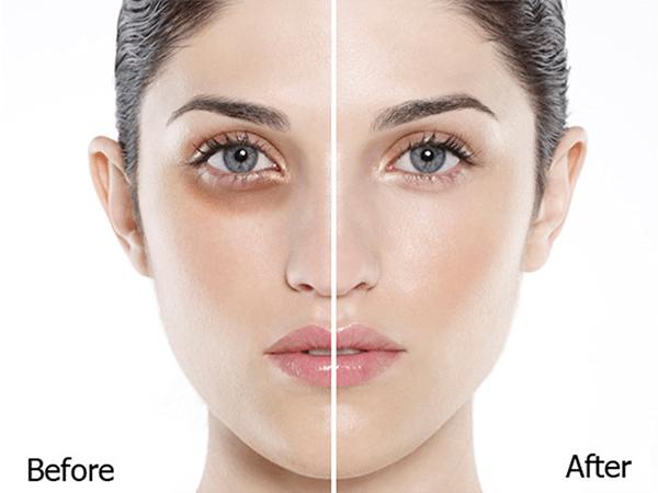Sự cải thiện rõ rệt khi dưỡng vùng da dưới mắt với dầu dừa