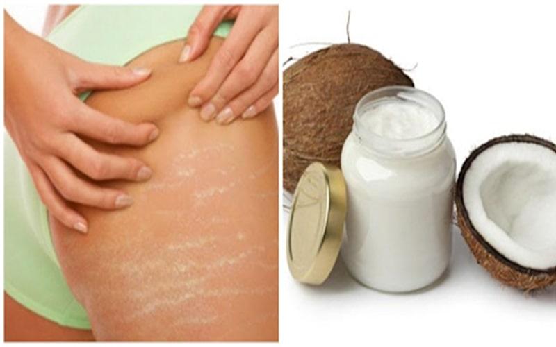 Sử dụng dầu dừa có thể giúp làm giảm các vết rạn, làm chúng phai mờ dần.