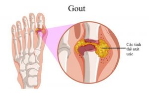 Các tinh thể axit uric lắng đọng làm viêm khớp khiến người bệnh đau đớn