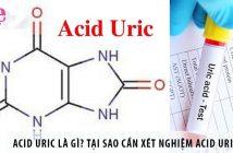 Acid uric là gì? Tại sao cần xét nghiệm acid uric máu?