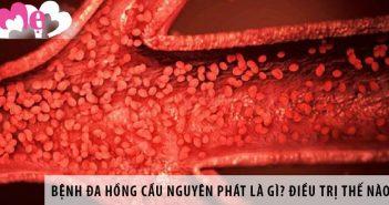 Bệnh đa hồng cầu nguyên phát là gì? Điều trị như thế nào? 1