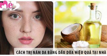7 cách trị nám da bằng dầu dừa hiệu quả tại nhà