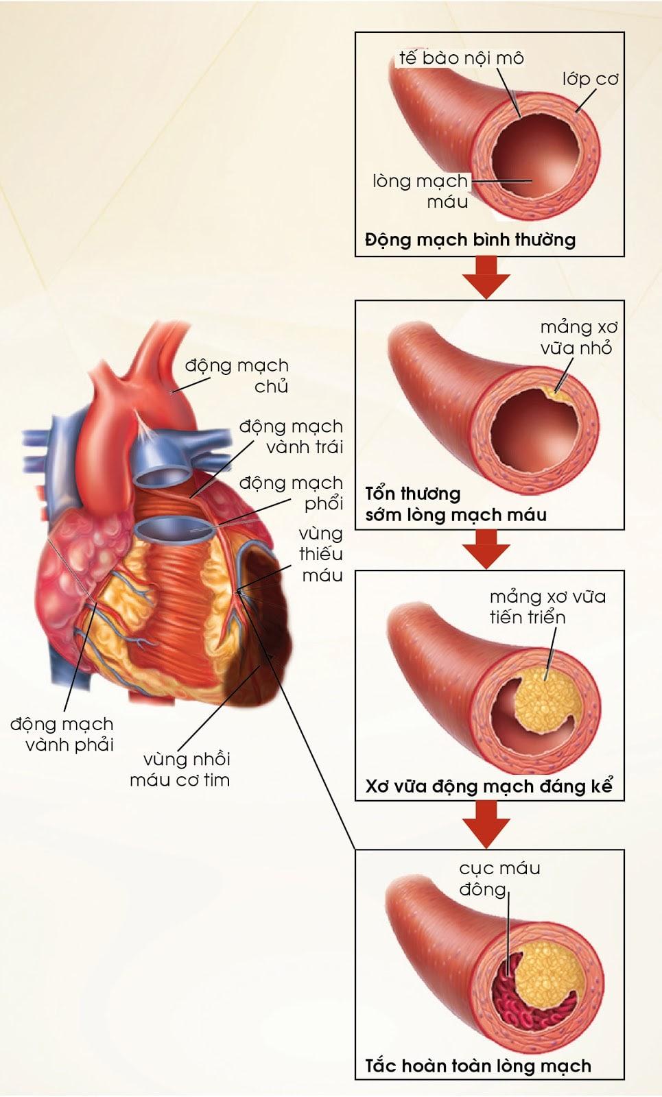 Các biến chứng của rối loạn mỡ máu