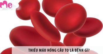 Thiếu máu hồng cầu to là bệnh gì? Có nguy hiểm không?