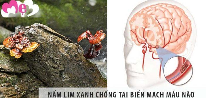 Top 1 địa chỉ bán nấm lim xanh chống tai biến mạch máu não