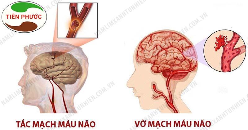 Bệnh tai biến mạch máu não cực kì nguy hiểm