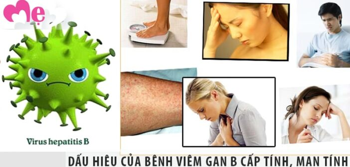 Dấu hiệu của bệnh viêm gan B cấp tính, mạn tính